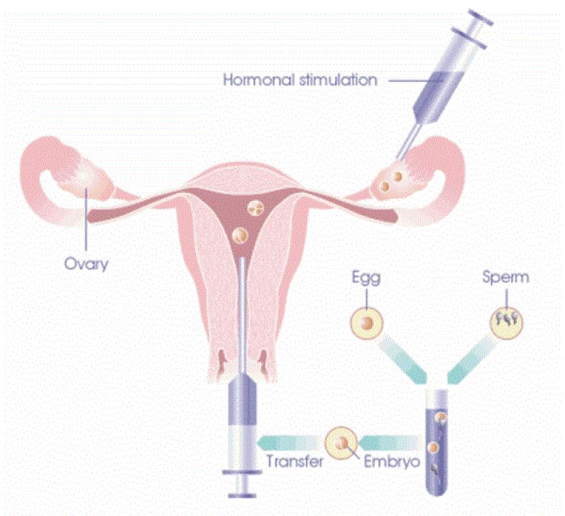 Clínica Ginecológica para Fertilização In Vitro Moema - Clínica para Cirurgia para Cistos de Ovário