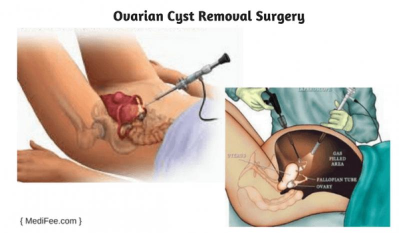 Clínica para Cirurgia para Cistos de Ovário Butantã - Clínica para Cirurgia para Cistos de Ovário
