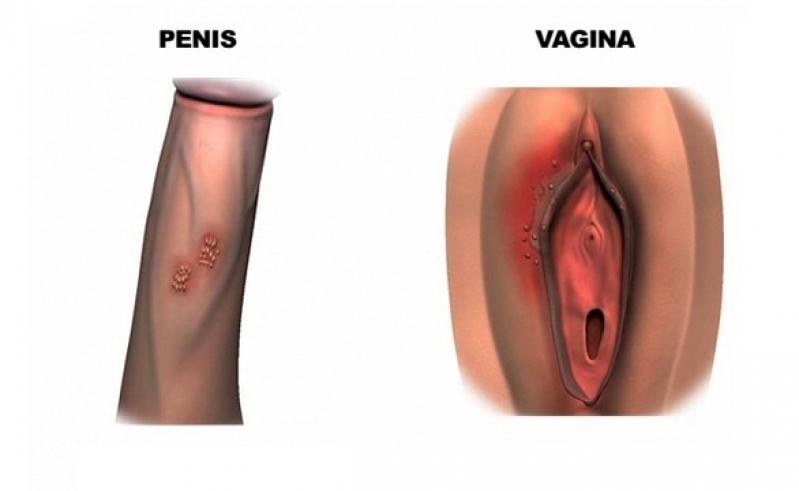 Clínicas para Tratamento de Hpv Pacaembu - Tratamento Hpv Feminino a Laser