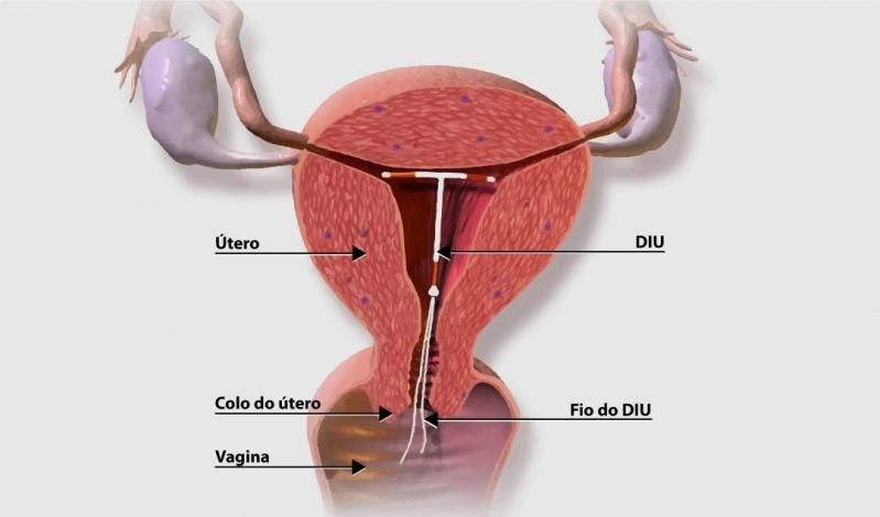 Ginecologista para Colocação de Diu Mirena Preço Vila Madalena - Ginecologista para Tratamento de Vagina Seca