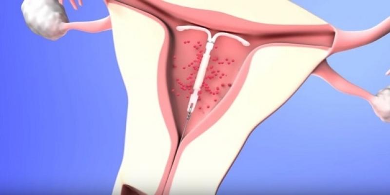 Ginecologista para Tratamento de Endometriose Jardim América - Clínica para Cirurgia para Cistos de Ovário