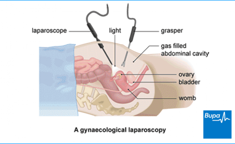 Ginecologista para Tratamento de Mioma Paraíso - Clínica para Cirurgia para Cistos de Ovário