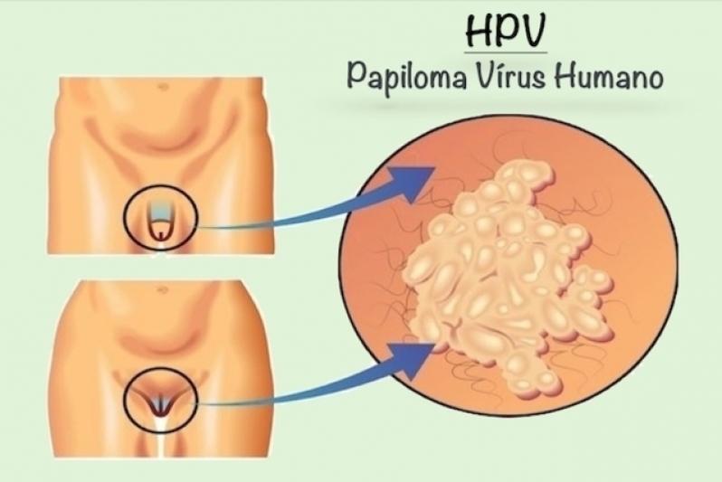 Ginecologista para Tratamento de Verrugas Vila Leopoldina - Ginecologista para Infecção Urinária