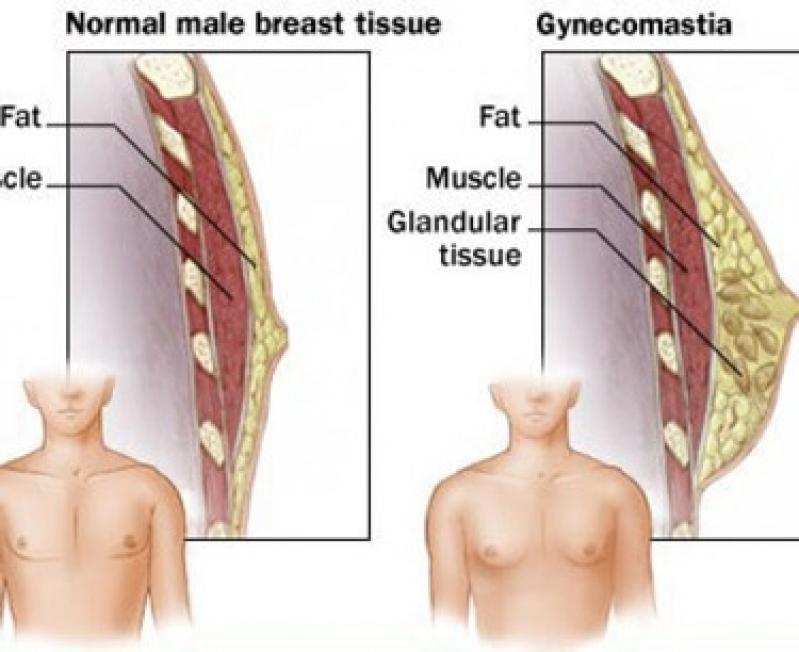 Ginecomastia Jabaquara - Mastologista Clínica