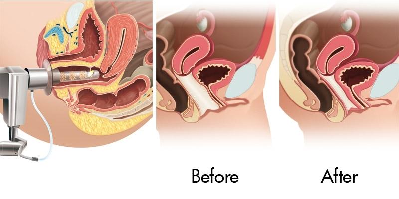 Laser para Incontinência Urinária Feminina República - Tratamento Hpv Feminino a Laser