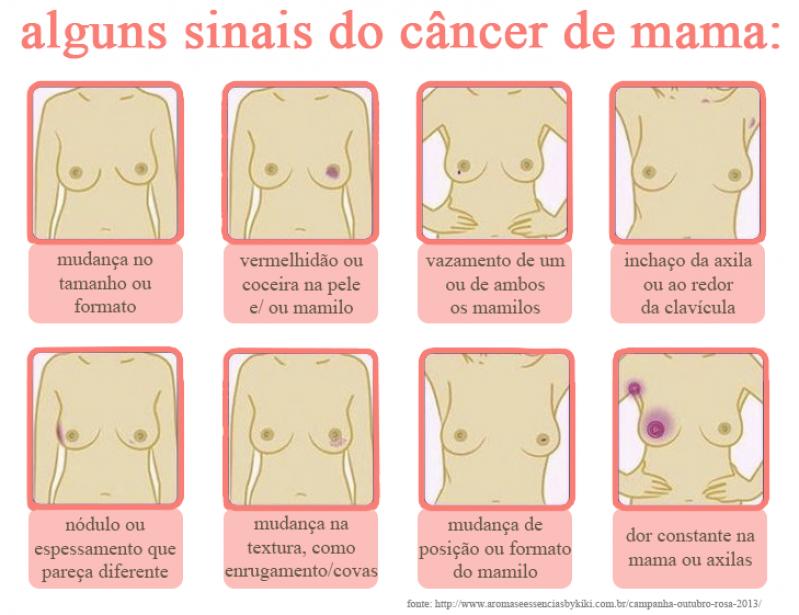 Médico Especialista Mama Perto Jardim América - Médico Oncologia Mama
