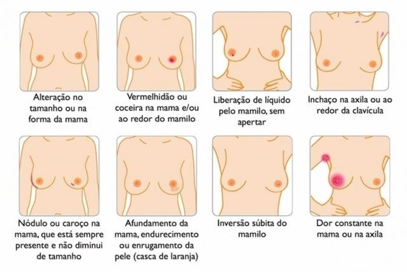 Médico Oncologia Mama Perto Chácara Inglesa - Médico de Mama Feminina