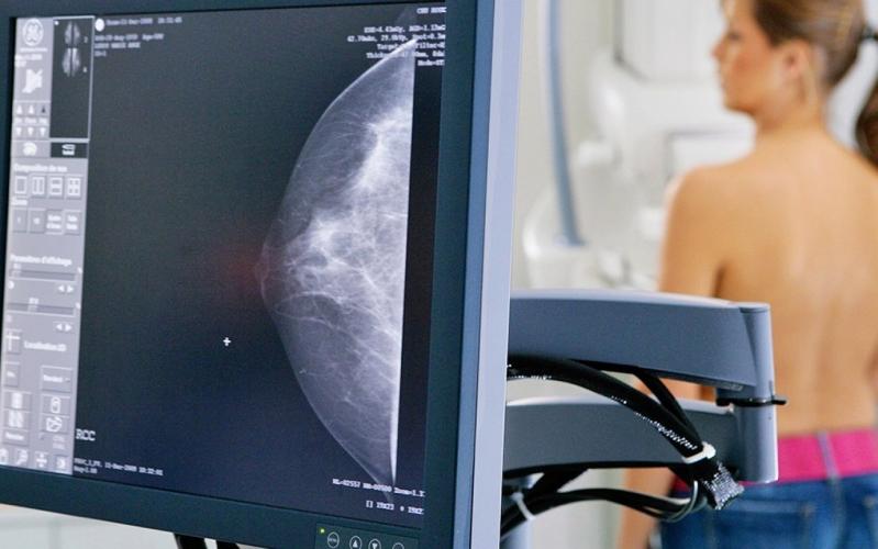 Médico para Nódulos na Mama Perto Alto da Boa Vista - Médico de Mama Feminina