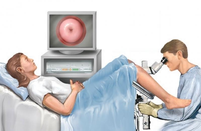 Onde Encontrar Clínica para Exame de Colposcopia Chácara Inglesa - Clínica para Cirurgia para Cistos de Ovário
