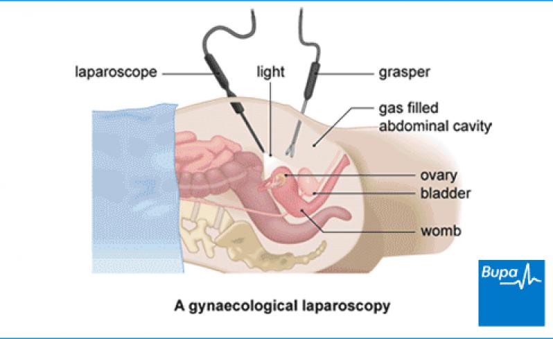 Onde Encontrar Ginecologista para Tratamento de Endometriose Chácara Klabin - Clínica para Cirurgia para Cistos de Ovário