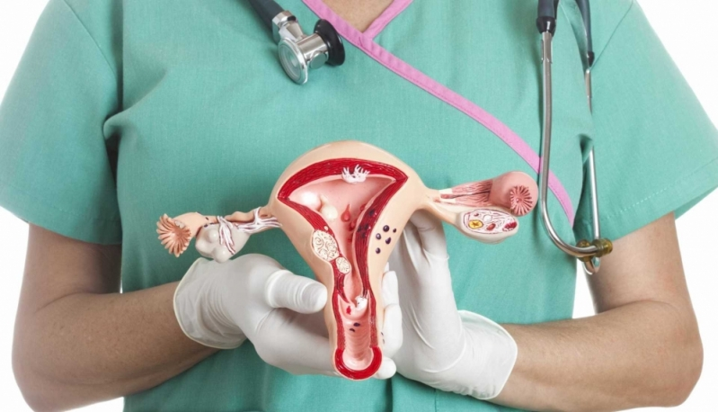 Onde Encontrar Ginecologista para Tratamento de Mioma Butantã - Clínica Ginecológica Especializada