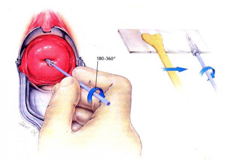 Onde Encontro Clínica para Vulvoscopia e Papanicolau Jardins - Clínica para Cirurgia para Cistos de Ovário