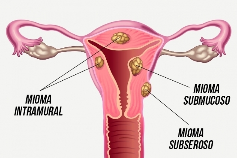 Onde Encontro Ginecologista para Tratamento de Mioma Vila Pompéia - Clínica para Cirurgia para Cistos de Ovário