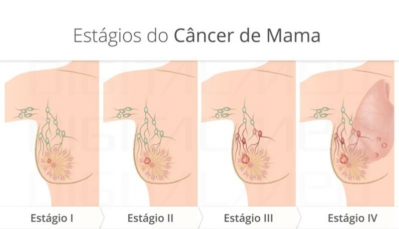 Procuro por Médico Que Trata Mama Av Brigadeiro Faria Lima - Médico para Mama