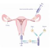 clínica ginecológica para fertilização in vitro Bela Vista