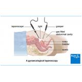 Ginecologista para Tratamento de Endometriose
