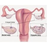 consulta ginecologista particular