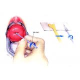 consulta ginecologista preventivo agendar Mooca