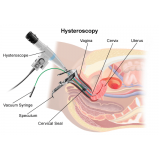ginecologista para tratamento de mioma preço Vila Pompéia