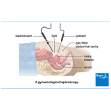 ginecologista para tratamento de mioma Brooklin Paulista
