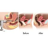 laser para incontinência urinária feminina Tatuapé