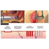 laser rejuvenescimento vaginal preço Aclimação