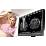 clínica de mastologia