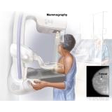 mastologia para doenças graves valor Brooklin Novo