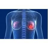 mastologia para mulher com câncer valor Real Parque