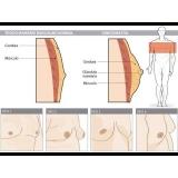 mastologista masculino Ibirapuera
