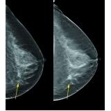 médicos especialista em mama Alto de Pinheiros