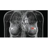 médicos oncologia mama Santa Cecília