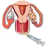 onde encontrar clínica de inseminação artificial Campo Belo