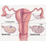 onde encontrar ginecologista para tratamento de cisto no ovário Planalto Paulista