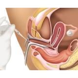 onde encontro clínica de inseminação artificial Itaim Bibi