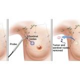 onde encontro clínica de mastologia Moema