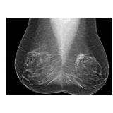 onde encontro mastologista oncologista Vila Anglo Brasileira