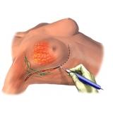onde encontro tratamento para câncer de mama Barra Funda