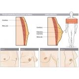 procuro por médico para tratar mama Alto de Pinheiros