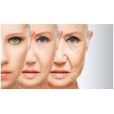 reposição hormonal na menopausa Chácara Inglesa
