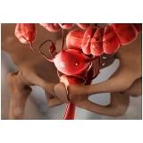 tratamento em clínica de fertilização in vitro humana Barra Funda