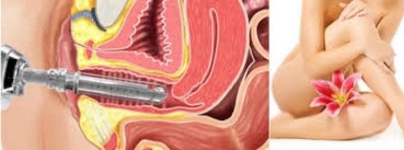 Tratamento a Laser Ginecológico Valor Itaim Bibi - Tratamento Hpv Feminino a Laser